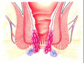 痛くない痔の手術(PPH法)