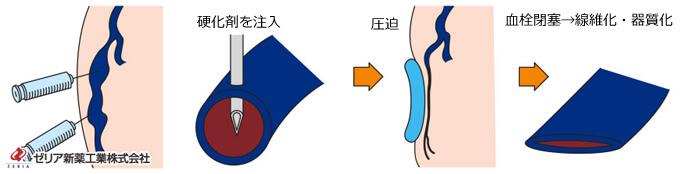下肢静脈瘤注射治療